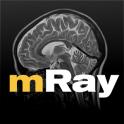 mRay - DICOM Viewer
