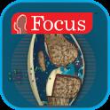 Atlas of Rheumatoid Arthritis